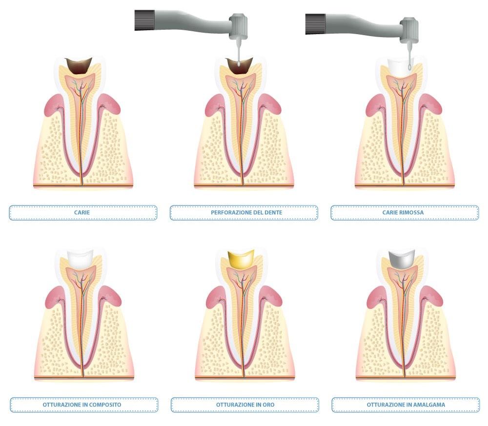 Ricostruzione Dente torino