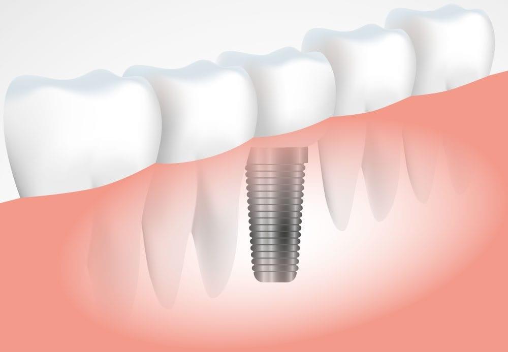 impianti dentali torino